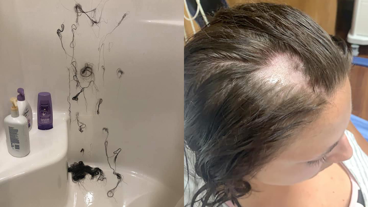 Woman Loses Hair In Clumps After Nair Was Allegedly Mixed Into